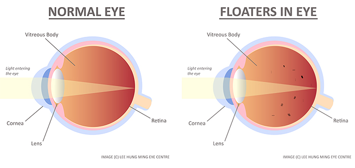 Illustration of the eye depicting conditions before and after development of eye floaters in vitreous body. Seek diagnosis and treatment at Lee Hung Ming Eye Centre Singapore.