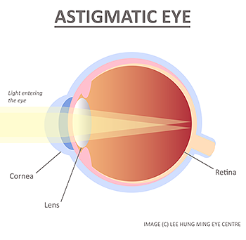 Astigmatism in Singapore - causes and treatments. Lee Hung Ming Eye Centre Singapore.