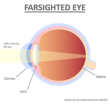 farsighted-eye-hyperopia-lee-hung-ming-eye-centre-rs