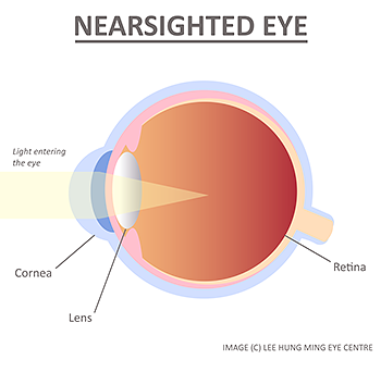 nearsighted-eye-myopia-lee-hung-ming-eye-centre-rs