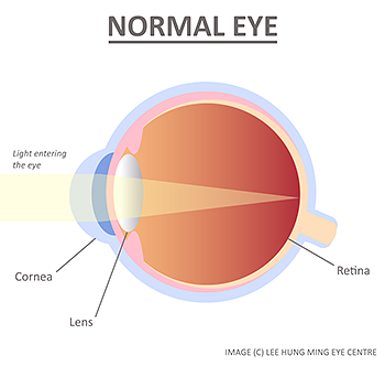 normal-eye-lee-hung-ming-eye-centre-rs