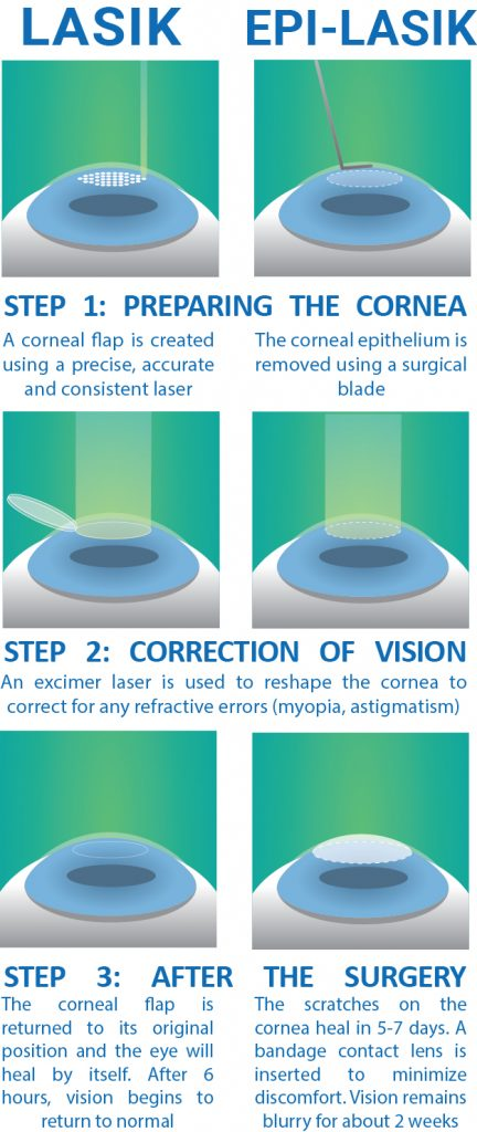Which Lasik Treatment Is The Best Lee Hung Ming Eye Centre