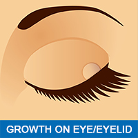 Common Eye Problems Eye Growth Eyelid Growth - Lee Hung Ming Eye Centre