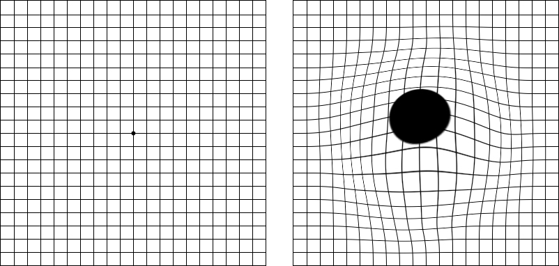 Age-Related Macular Degeneration AMD Vision Before and After Simulation Amsler Grid Chart Lee Hung Ming Eye Centre Singapore