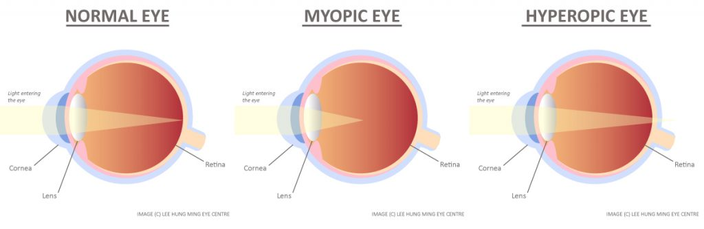 Myopia, Hyperopia, Long-Sightedness, Far-Sightedness Eye Illustration Refractive Errors