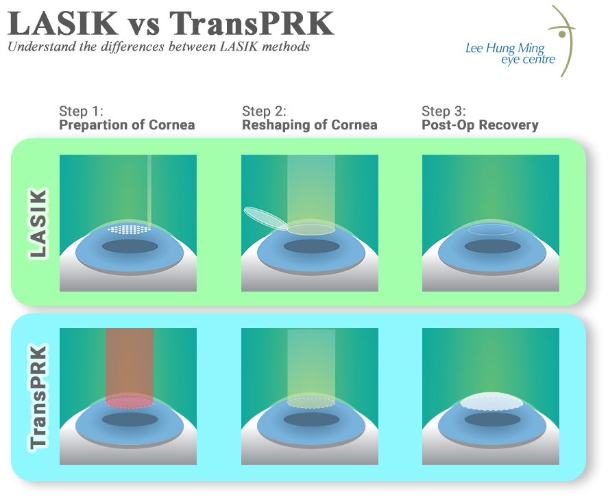 TransPRK vs LASIK Lee Hung Ming Eye Centre Singapore