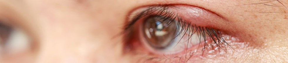 Common Eye Problems and Diseases Doctor Eye Specialist Lee Hung Ming Eye Centre Eye Stye